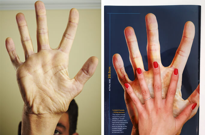 Meet-Sultan-Kosen-who-holds-the-record-for-the-largest-hands-for-a-living-person